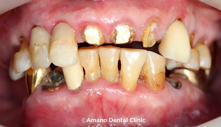 ない 歯 方法 痛く グラグラ を 抜く の