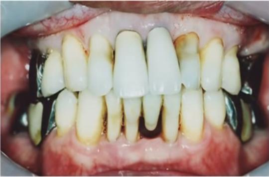抜ける 年齢 が 歯