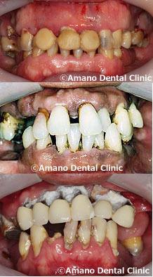 漏 歯槽 治療 膿 歯槽 膿